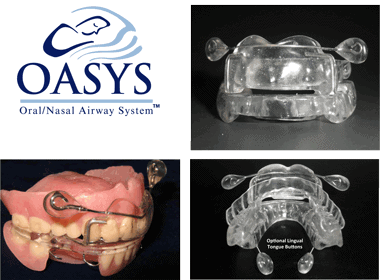 Oasys FDA Description
