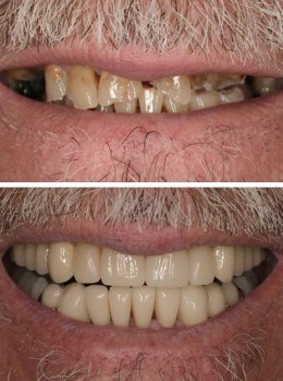 Before and after of a full mouth restoration