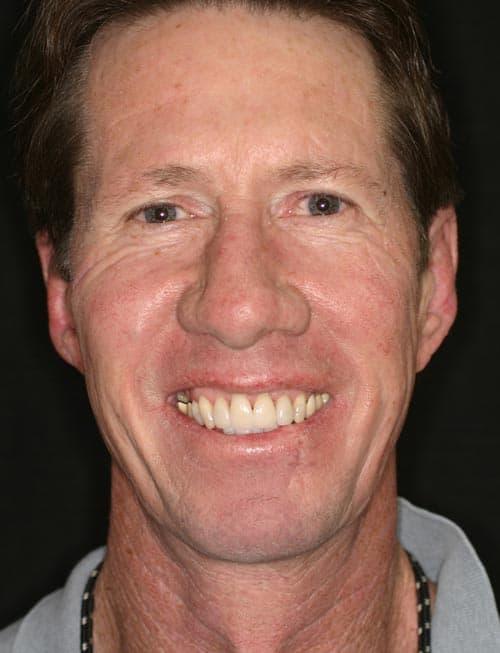 Jim Smile
