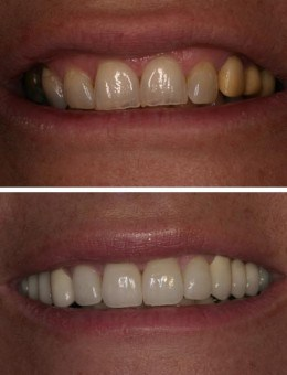 Before and after photo of porcelain veneers