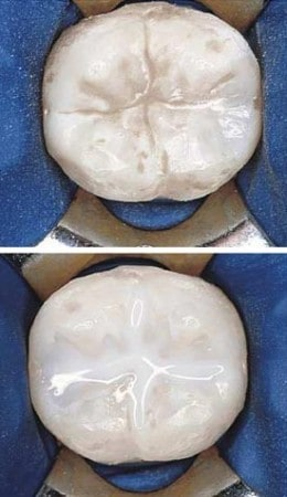 Sealants: Before and After