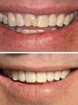 Before and after of tooth bonding