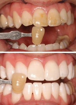 Before and after of KoR Teeth Whitening